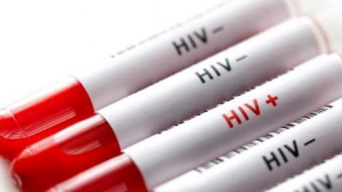 HIV vakalarında yüzde 465 artış