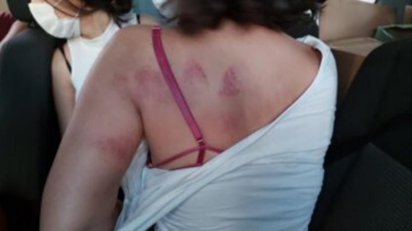 pınar gültekin eylemine polis saldırısı