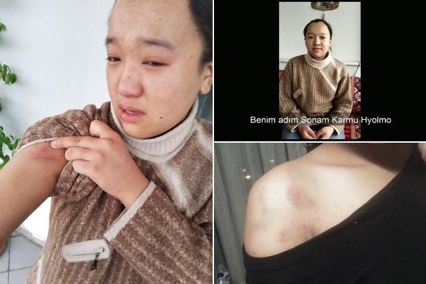Ankara'da çalışmaya gelen Nepalli kadına patron işkencesi!